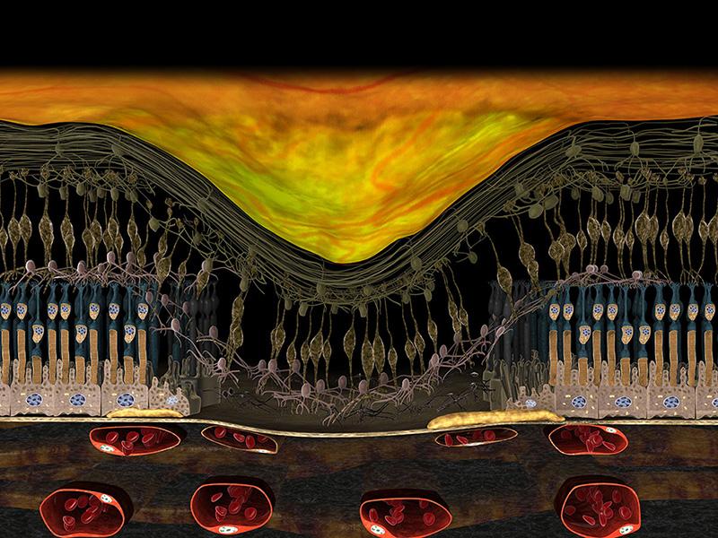 3D Darstellung Fortgeschrittenes Stadium trockene AMD