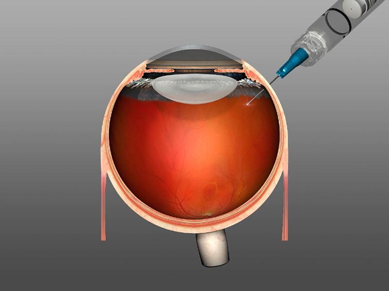 Intravitreale Injektion im Bereich der Pars plana