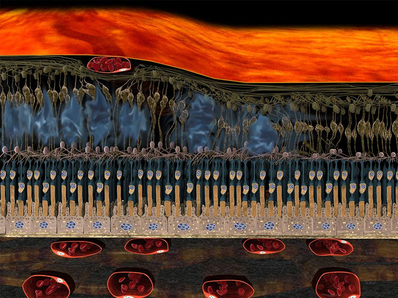 3D Darstellung Zentralvenenverschluss