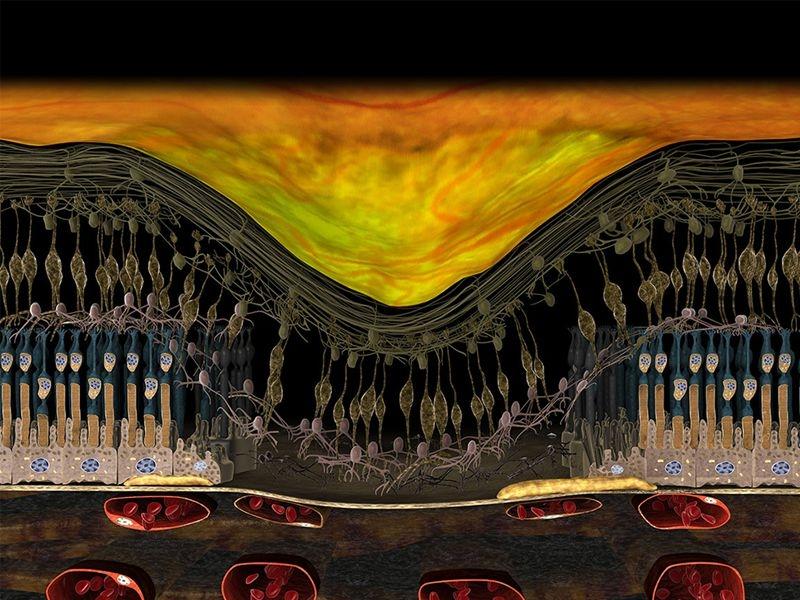 3D-Darstellung_Fortgeschrittenes-Stadium-trockene-AMD